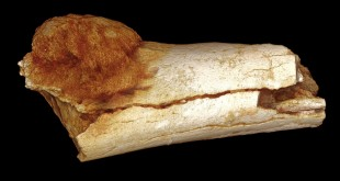 Scientists using a high-resolution X-ray technique found that this bone belonging to a hominin, an ancient, extinct relative of modern humans, has a malignant tumor.