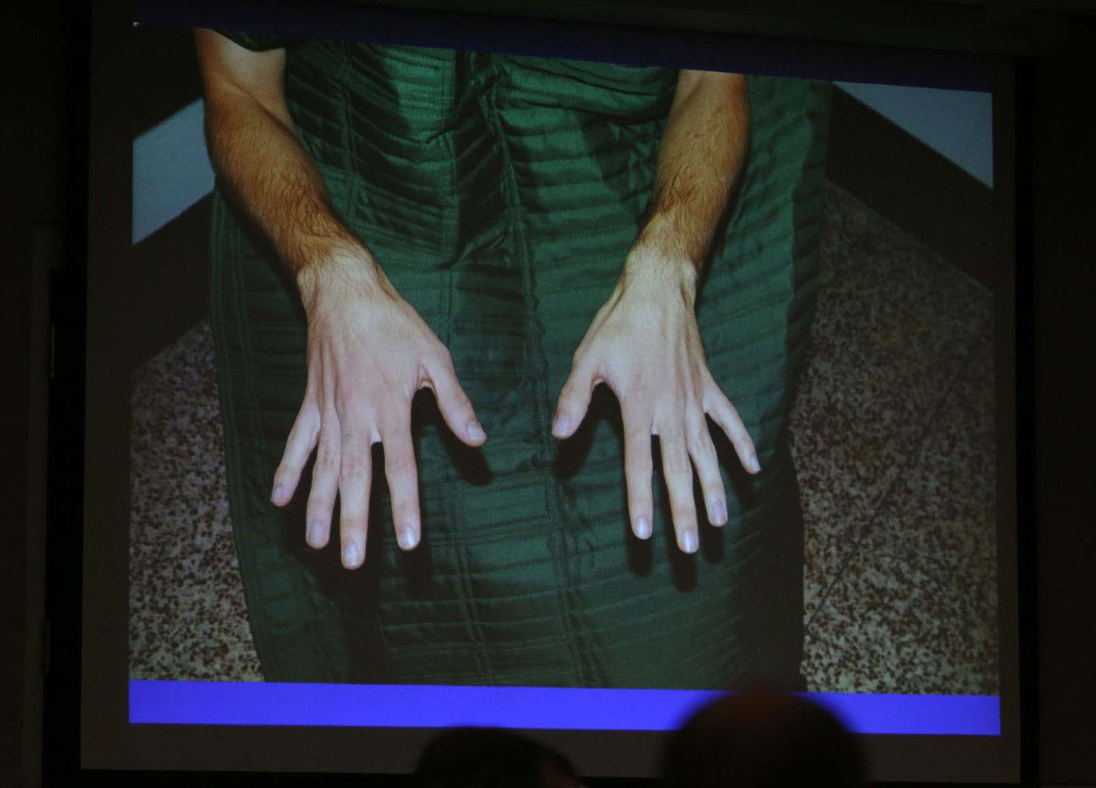 The prosecution shows a jail photo of Pedro Bravo's hands as part of their closing statement during Pedro Bravo's murder trial in courtroom 1B of the Alachua County Criminal Justice Center Friday, August 15, 2014.  Bravo is accused of killing University of Florida student Christian Aguilar.  (Doug Finger/The Gainesville Sun/Pool)