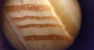 Microscope-picture