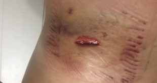 Bullet Wound 3
