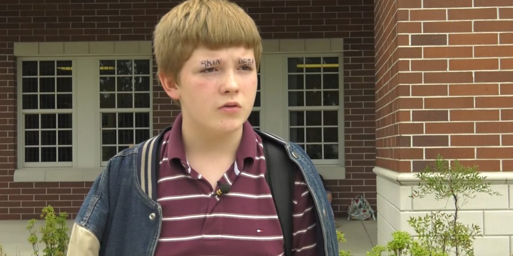Marion County Student Shaved His Eyebrows To Help Stop ...